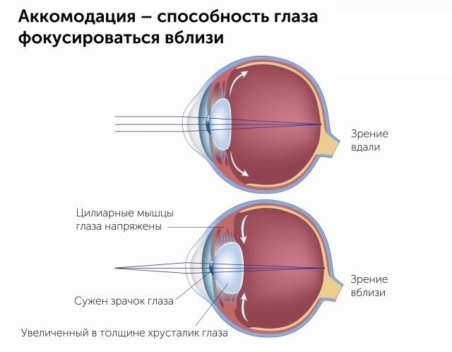 Как я не сделала лазерную коррекцию зрения