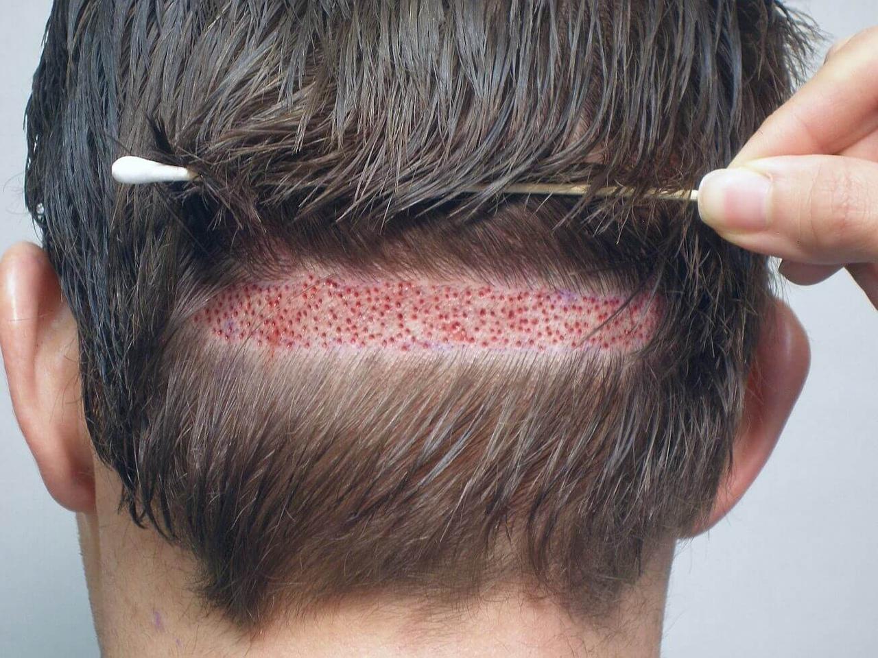 Актуальная проблема облысения кожи головы