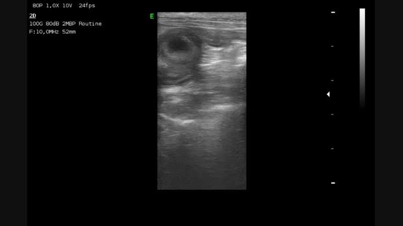 Инородное тело (мяч) в тонком отделе кишечника