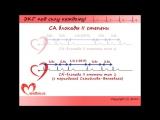 Лекция 6. Пропедевтика внутренних болезней. ЭКГ