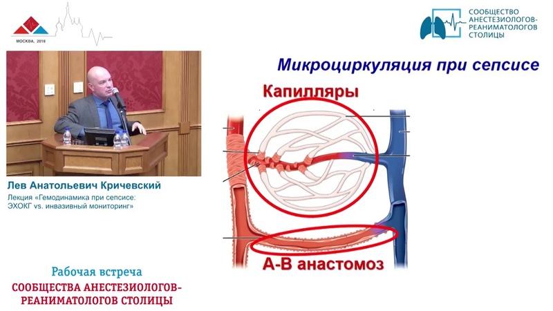 Гемодинамика при сепсисе УЗИ vs Инвазив Киричевский Л А