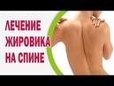 Лечение жировика на спине