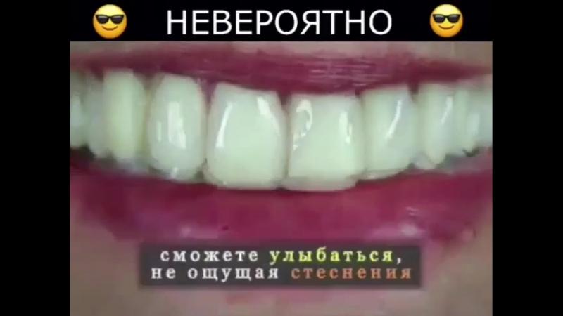 Уникальная альтернатива стоматологическим винирам