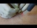 Лазерная флебология