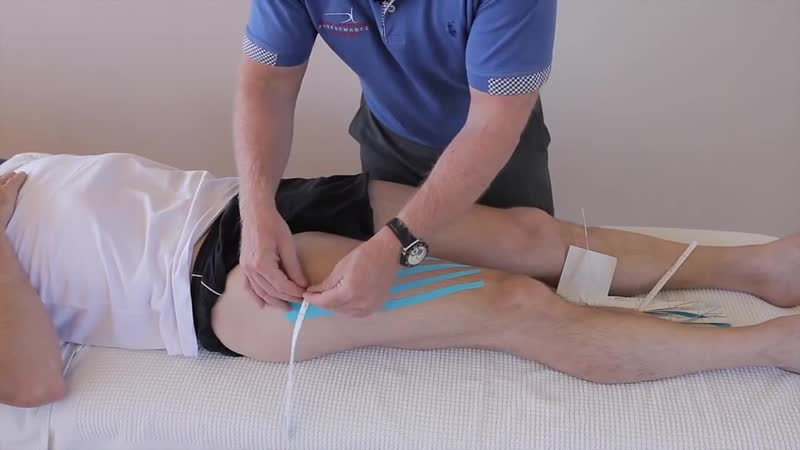 How to treat a bruise _ haematoma _ swelling of the quadriceps using kinesiology tape