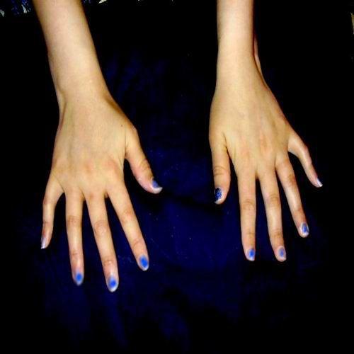 Руки с суставами, поврежденными ревматоидным артритом Юлия Викторовна - 22 года, женщина - ревматоидный артрит 6 лет (обе руки).