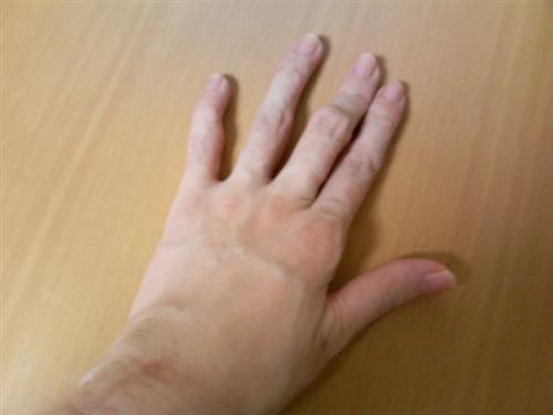 Руки с суставами, поврежденными ревматоидным артритом ТТМ - 38-летняя женщина из Японии - ревматоидный артрит в течение 17 лет (правая рука).