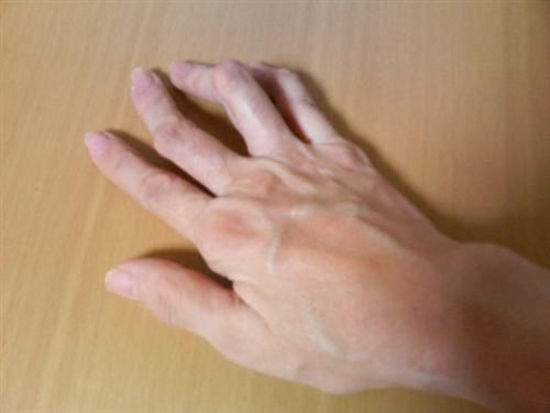 Руки с суставами, поврежденными ревматоидным артритом ТТМ - 38 лет, женщина - ревматоидный артрит в течение 17 лет (левая рука).