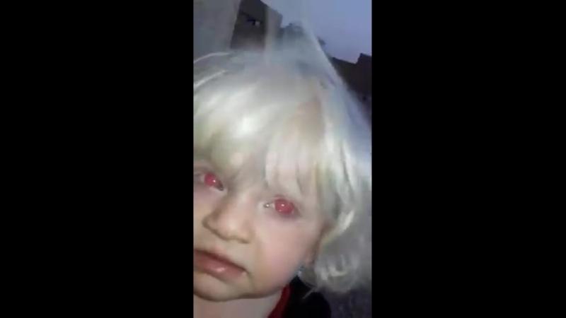 Allah'ım herşeye kadirdir bu Iraklı kızınızı gözlerini kırmızı olduğu örnektir en basiti