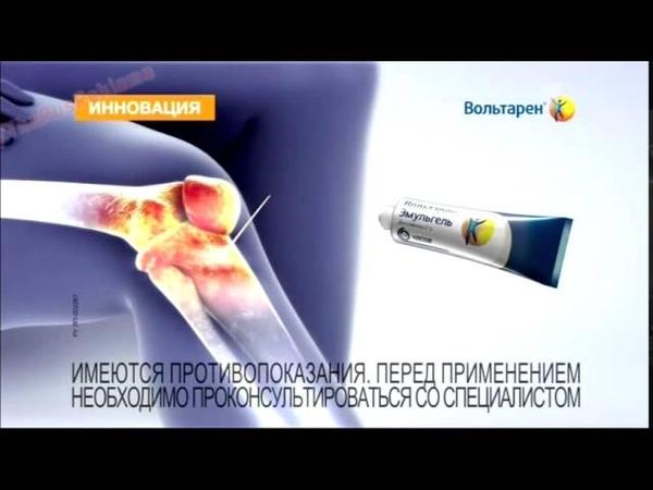 Реклама Вольтарен - 12-часовое действие