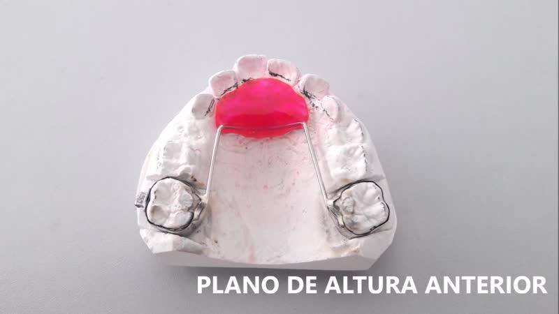 Различные ортодонтические аппараты - испанские названия.
