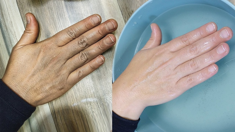 REMOVE WRINKLES ON YOUR HANDS. Clear The Hand ROUGHNESS And DRYNESS