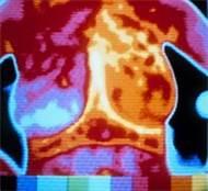 Что такое цифровая рентгенография?