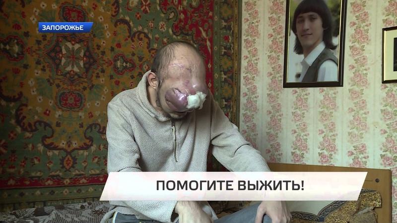 Помогите тридцатилетнему Роману Корниенко срочно нужны средства на лечение