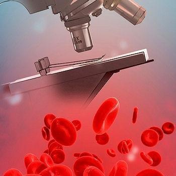 Что такое дискразия крови?