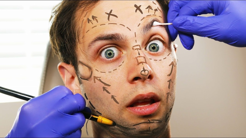 Should The Try Guys Get Plastic Surgery