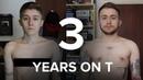 FTM Transgender - 3 Years on Testosterone