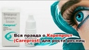 Всё о Карепрост (Careprost) для роста ресниц