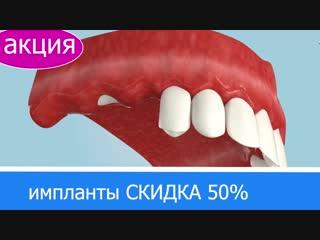 Скидка на импланты 50%