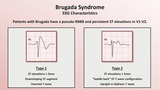 Advanced EKGs - Sudden Cardiac Death (Hypertrophic cardiomyopathy, ARVD, Brugada syndrome, and CPVT)
