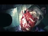 Resident Evil 2 Remake Uncut vs Cut Version