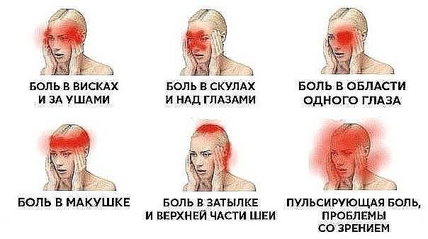 Головную боль нельзя игнорировать! 5 сигналов, которые предупреждают о серьезной болезни.