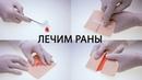 Хирург про заживление ран порезы ссадины и т д Первая помощь обработка использование мазей