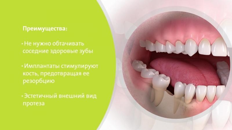 Импланты премиум класса Straumann в Великом Новгороде!