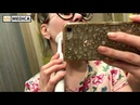 Видео отзыв звуковая электрическая щетка US Medica Smile Expert Plus