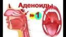 Аденоиды. Лечение аденоидов -№1. Как лечить аденоиды-народные рецепты