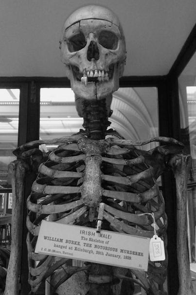 Был ли у вас такой момент, когда вы подумали, что вам пришла в голову гениальная бизнес-идея, которая сделает вас миллионером У Уильяма Хэра и его тёзки Бёрка такой момент случился в Эдинбурге в 1828 году. Когда умер один из их квартиросъёмщиков, друзья р