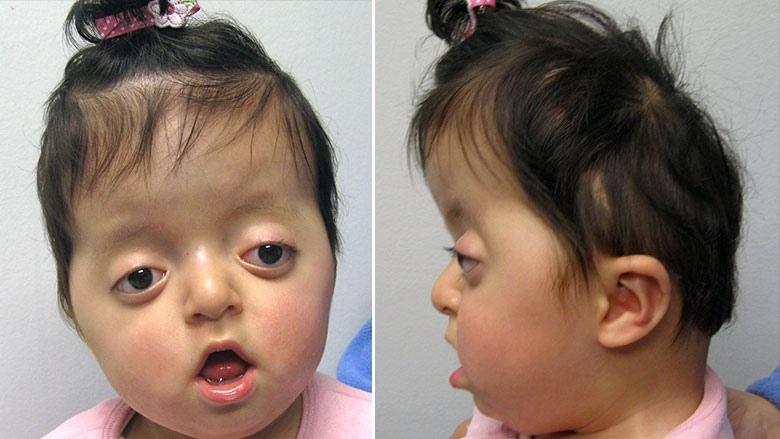 Синдром Пфайффера - это редкое заболевание, при котором пластинки черепа ребенка соединяются раньше обычного.
