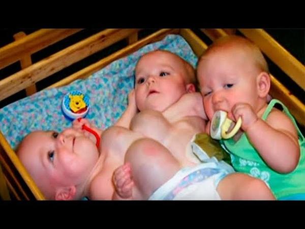 Родители отказались от детей когда узнали что они сиамские близнецы Жизнь детей спустя 16 лет