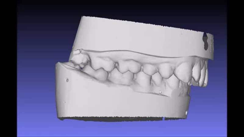 3D ортодонтия: правильная оценка окклюзии и композитный протокол