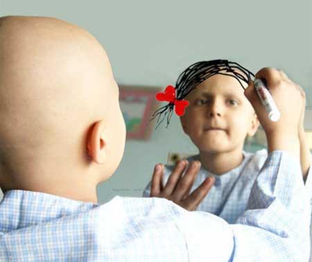 Раковые опухоли являются злокачественными, что означает, что они могут распространяться или проникать в близлежащие ткани.