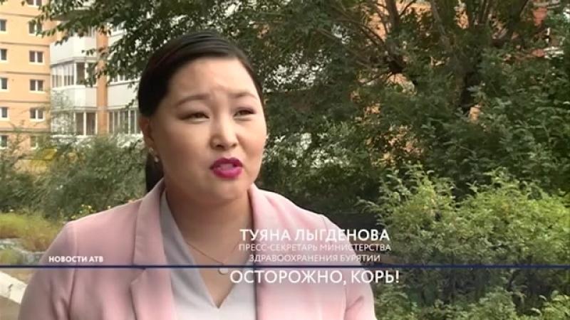 В медучреждении Улан Удэ ввели карантин из за кори