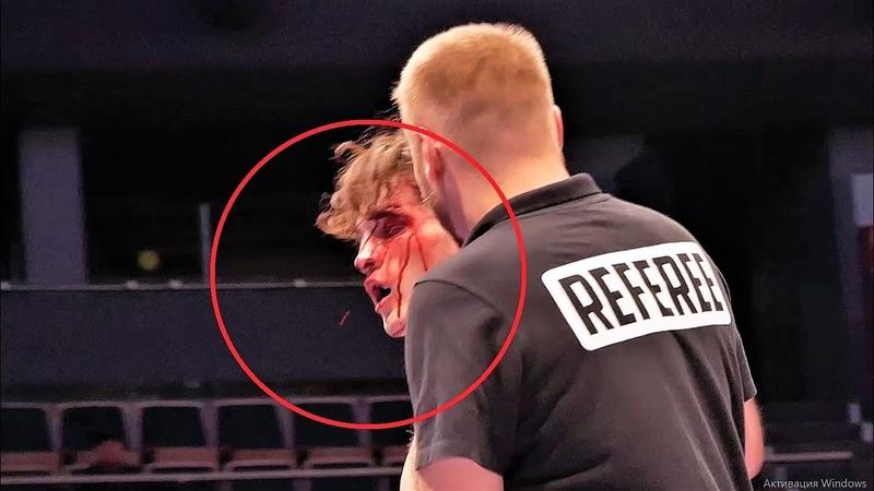 Узбек накидал хайкиков и в итоге разбил в кровь голову сопернику