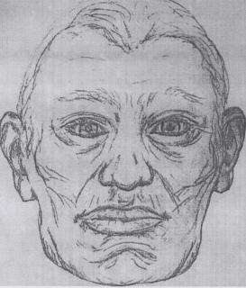 В Вологодском районе в пруду обнаружено тело мужчины с привязанным кирпичом