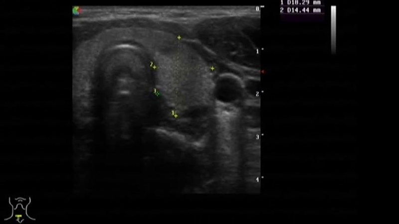 Ультразвуковая анатомия щитовидной железы и органов шеи