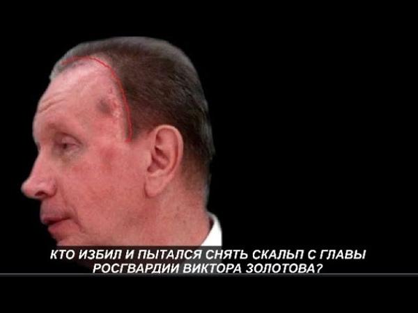 Кто избил и пытался снять скальп с главы Росгвардии Виктора Золотова.№977