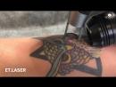 Удаление татуировок в студии ETLaser
