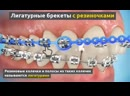 Лигатурные брекеты (с резиночками)
