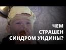 Синдром Ундины Как живут дети с редким заболеванием