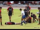 Funny Rugby injury Faking moment