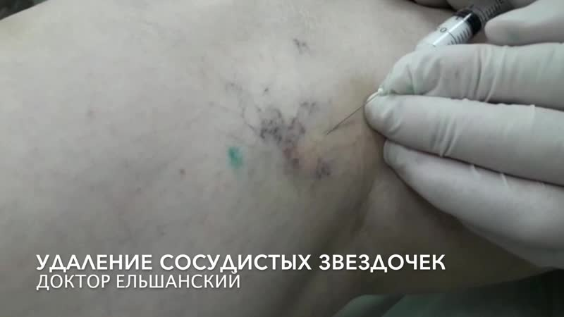 Удаление сосудистых звездочек на ногах в Москве