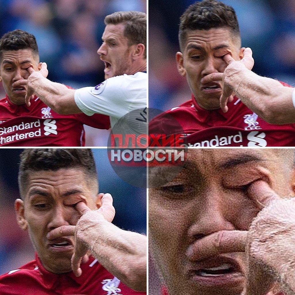 Футболист пальцем проткнул глаз соперника  Нападающий английского «Ливерпуля»