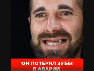 Голливудская улыбка за 5 секунд