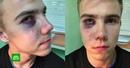 Бывший сотрудник МВД беспричинно избил подростка аутиста