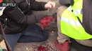 GRAPHIC Protester has hand ripped off during Yellow Vest march in Paris