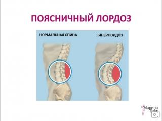 Как избавиться от болей в спине, сутулости и сделать спину здоровой! ТС ЛАЙТ ч.3